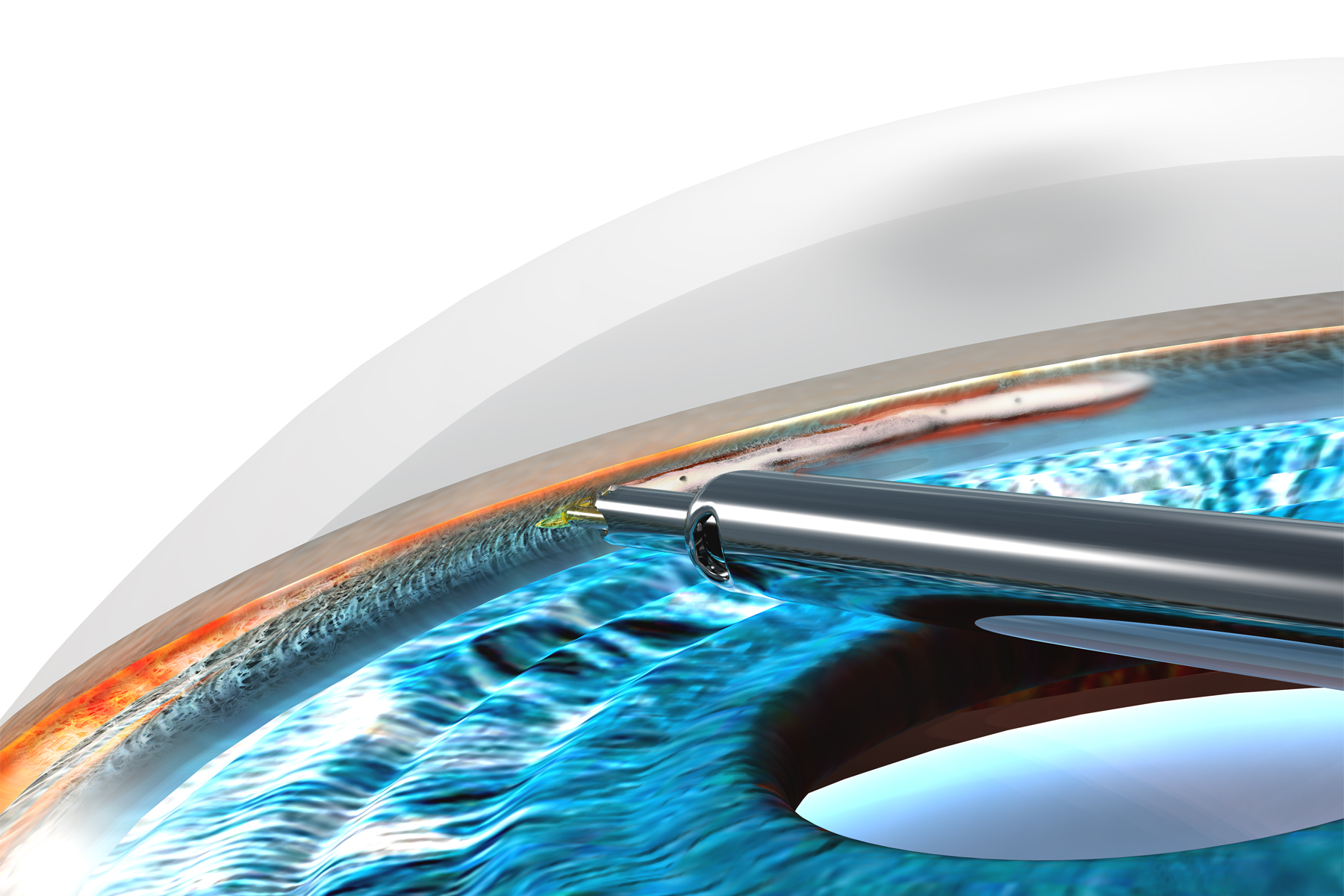 Trabectome-Handpiece-Tip-3D