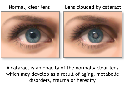 example of cataracts